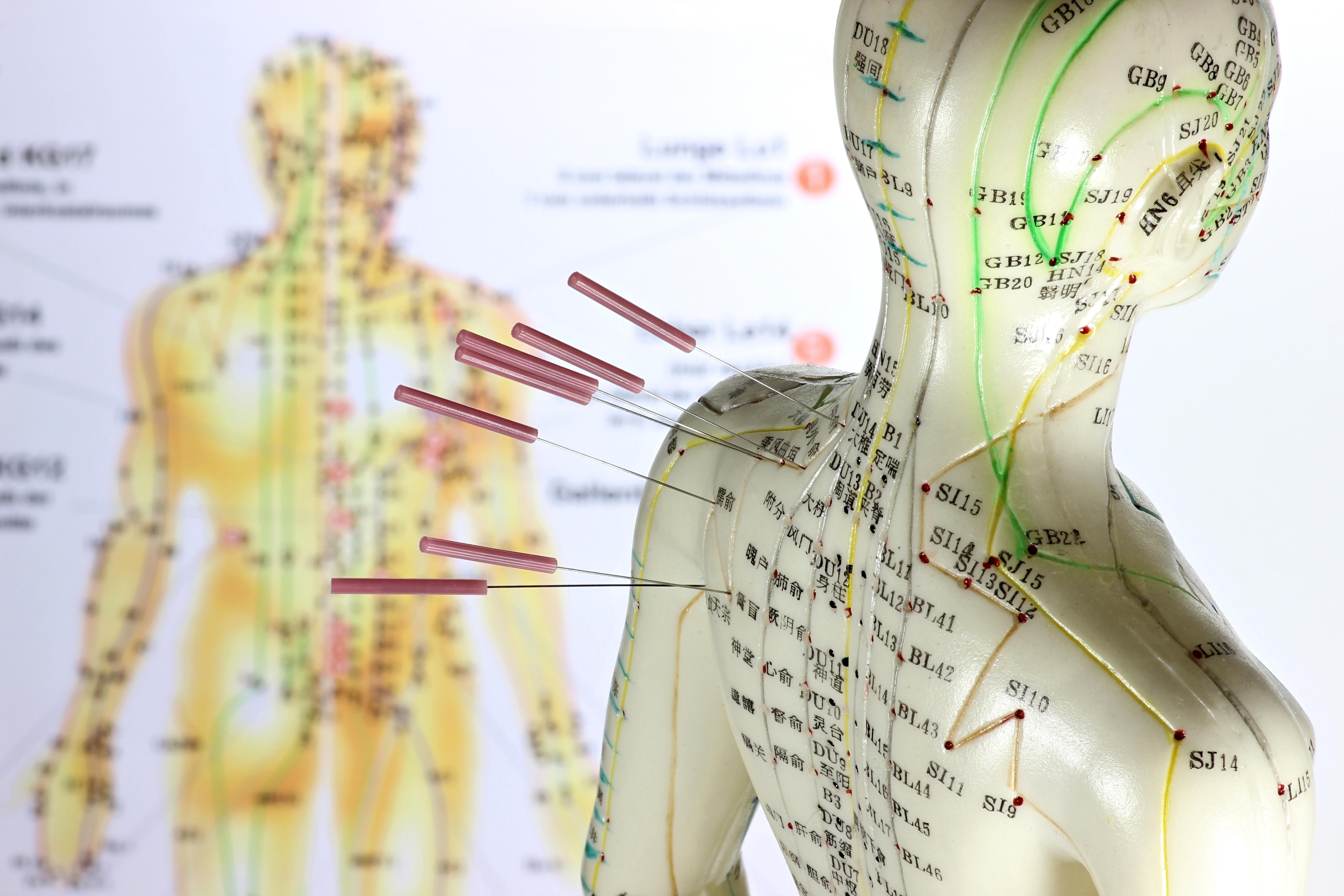 riveau osteopathe Arles Acupuncture